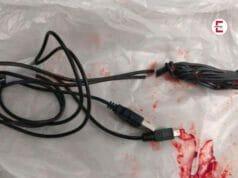 Un joven de 15 años se mete todo el cable USB en el pene